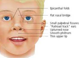 Figure 1. Characteristic facial features in a child with fetal alcohol syndrome. These includes a smooth philtrum, thin upper lip, and small palpebral fissures. Other associated features may include an upturned nose, underdeveloped ears, flat nasal bridge and midface, epicanthal folds and small head circumference (source: Darryl Leja, www.nih.gov).